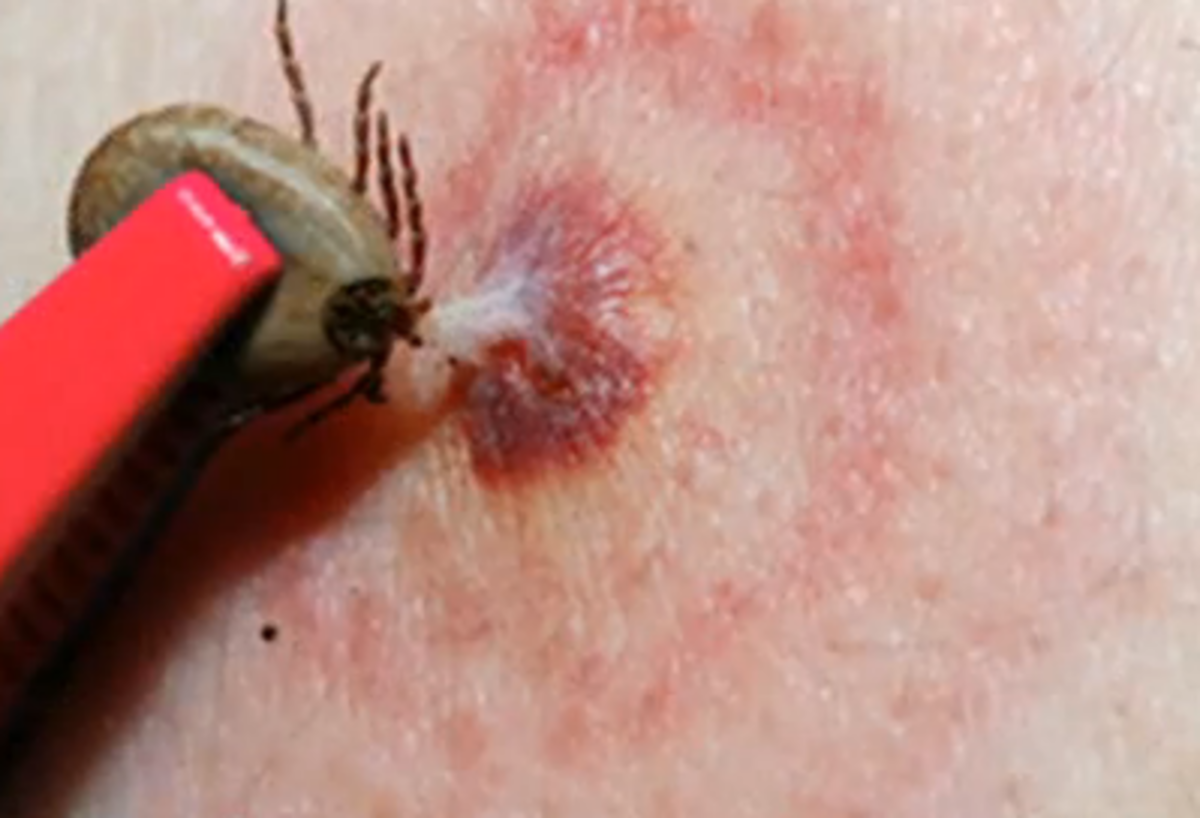 Tick Bites On Humans Images Symptoms Causes Treatment