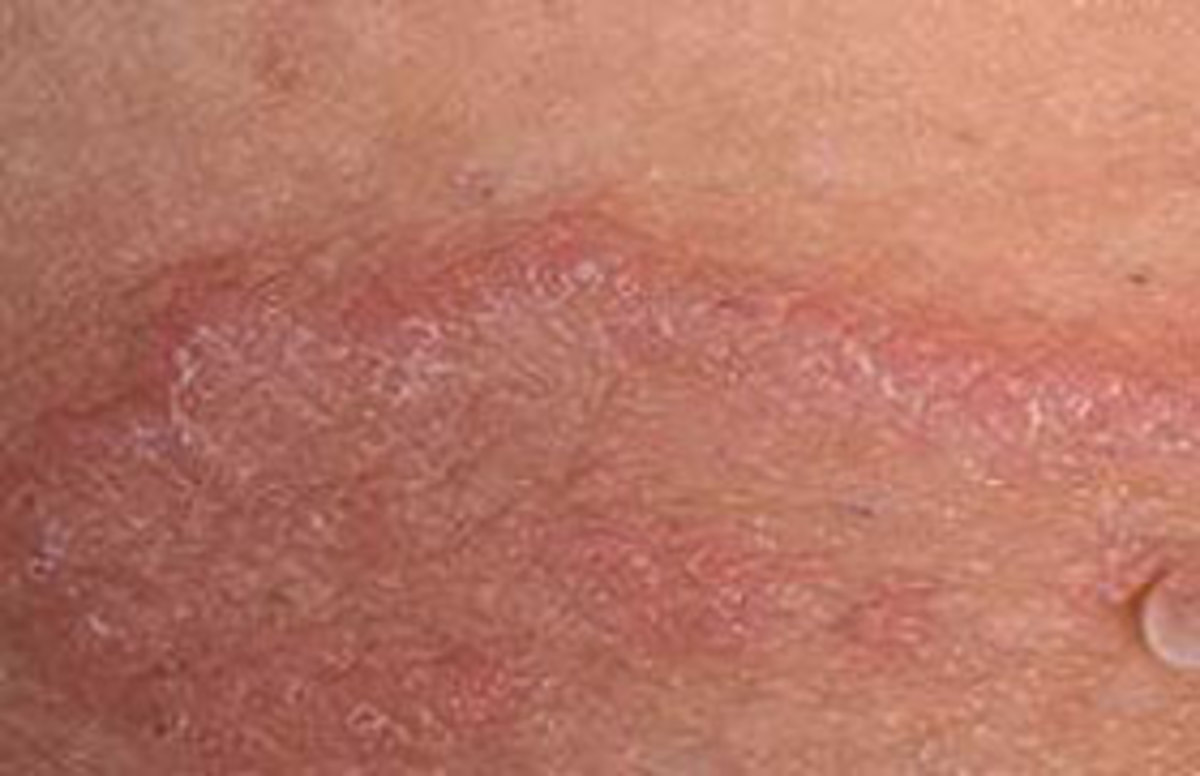 What Is Jock Itch, and What to Do about that Red, Itchy Penile Skin