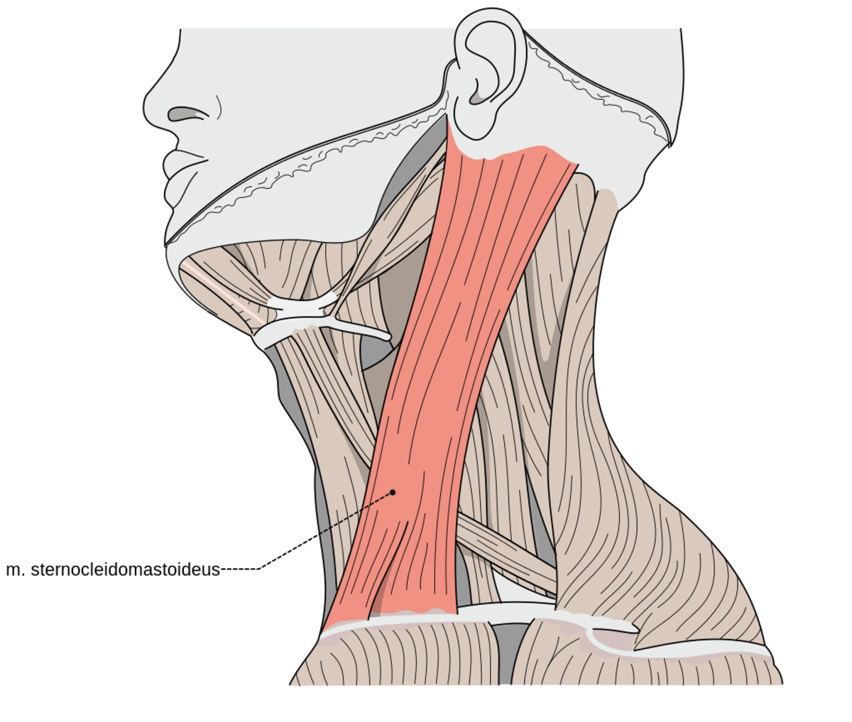 the sternocleidomastoid muscle - a culprit of widespread muscle, Human Body