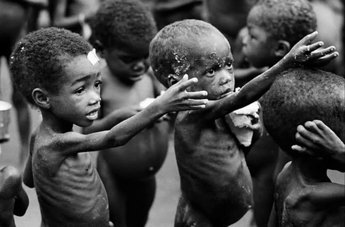 Malnourished children begging for food