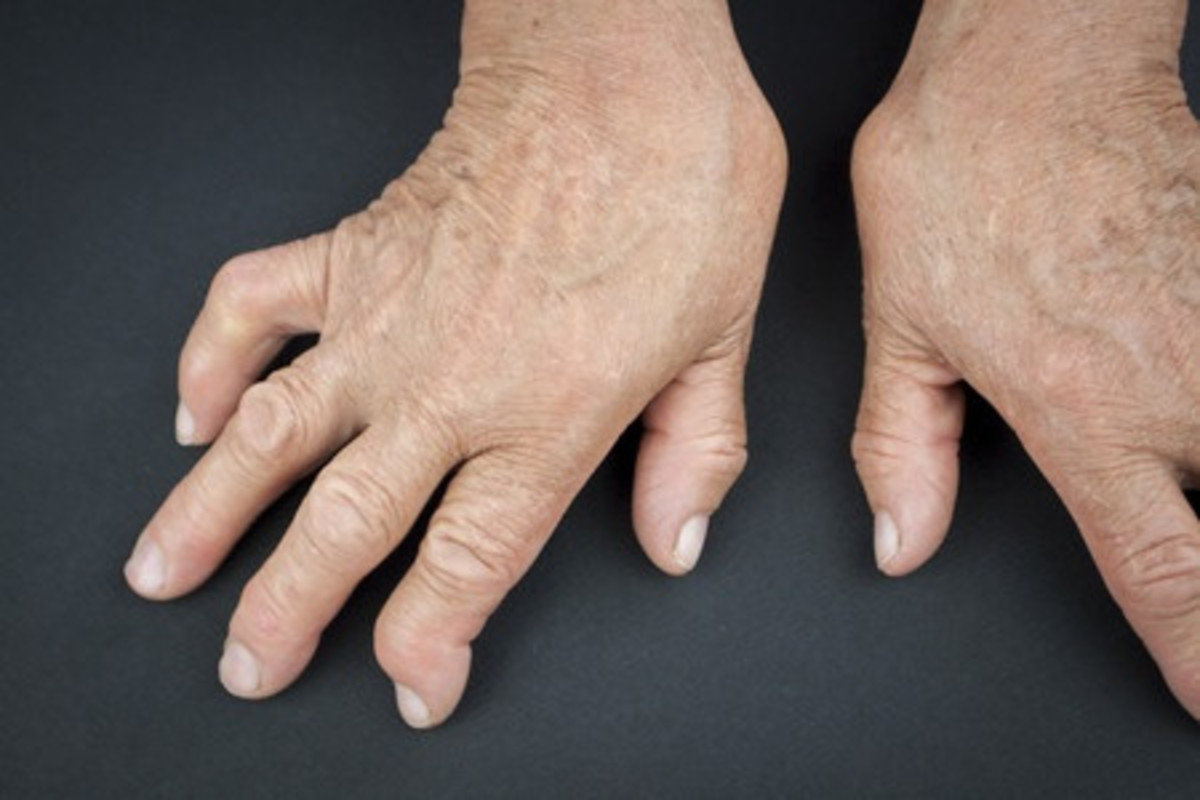 do-you-suffer-from-osteoarthritis-consider-using-special-gloves-to-relieve-the-pain-and-swelling