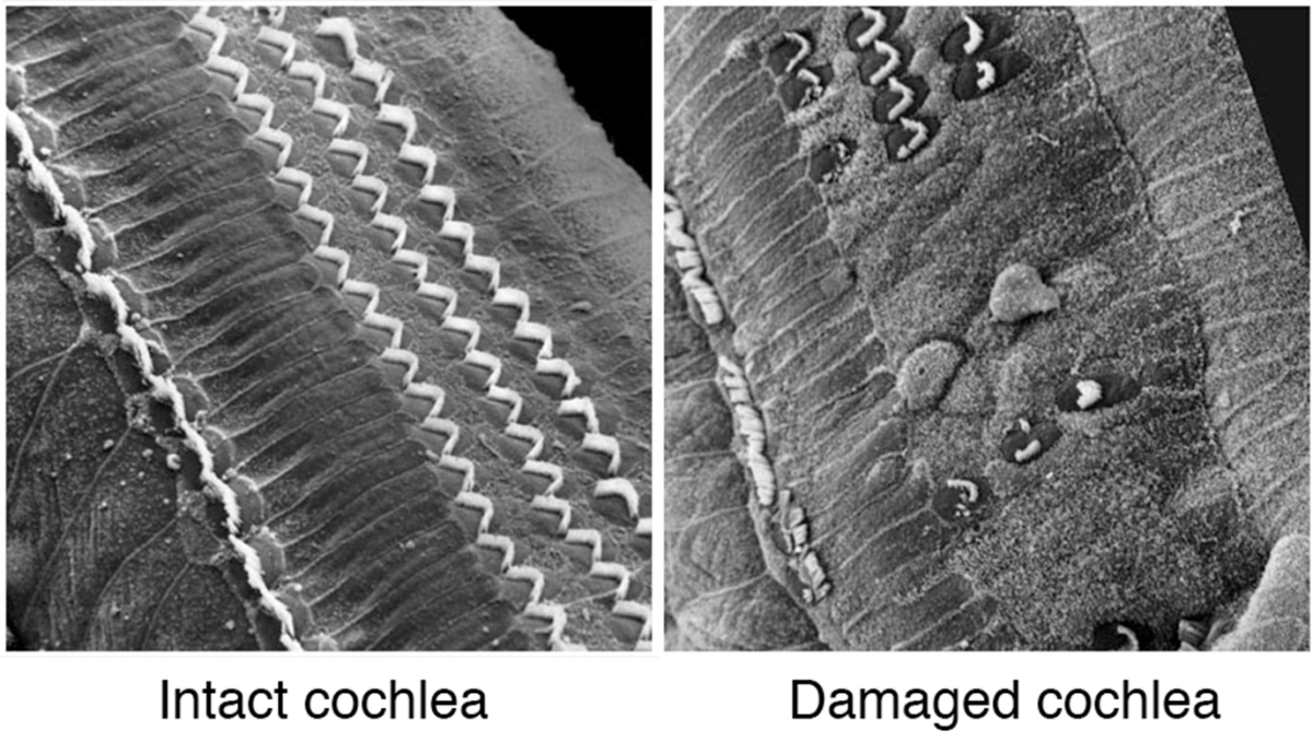 Your cochlea has tiny hairs that look like the image on the left when working well. After they get damaged they begin to look like the image on the right. They become broken or bent and can no longer detect sound as well, if at all.