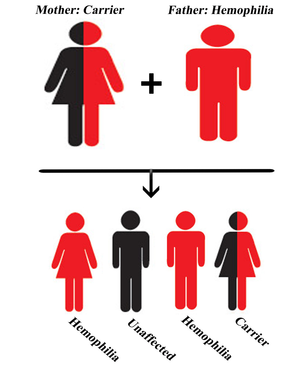 A rare case when there is a chance that a woman can have Hemophilia. When the father has Hemophilia and the mother is a carrier.; Chances of sons with Hemophilia: 50%, Chances of daughters who are either carrier or have Hemophilia: 50%