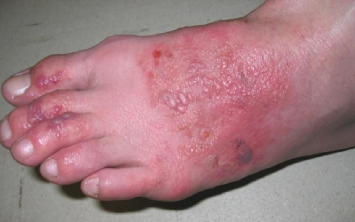 A case of complex eczema.