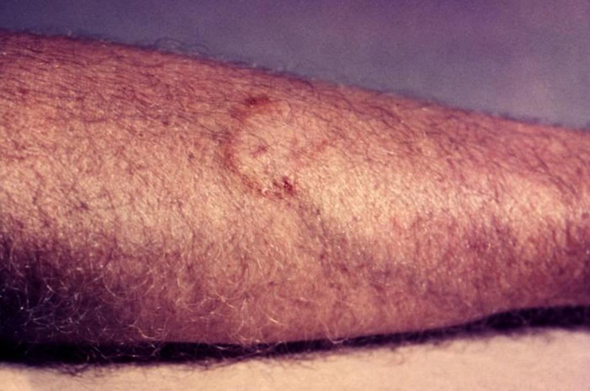 A fungal ringworm rash similar in appearance to tinea cruris, or jock itch.