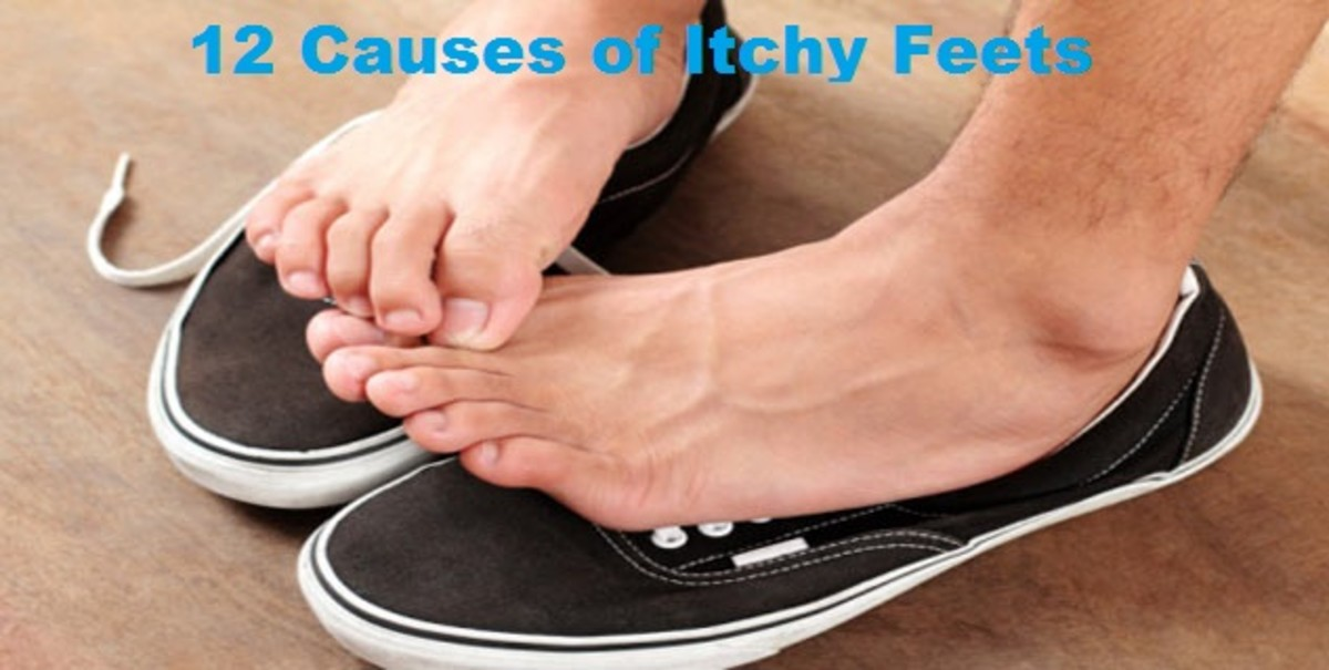 12 Causes of Itchy feets