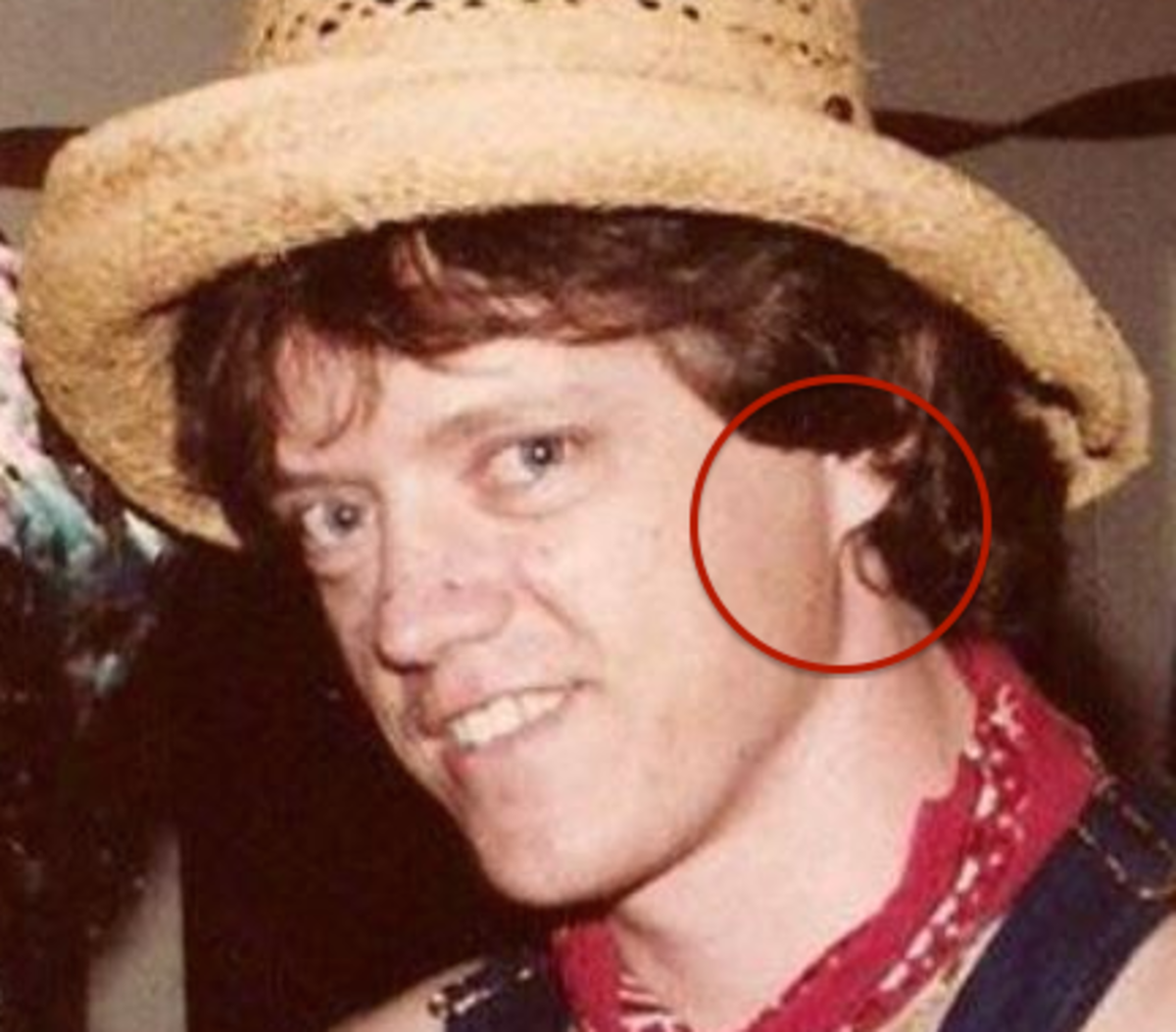 Clinton's earlobe is entirely attached.  It is important to note that this is not a dominant trait; most earlobes are unattached.