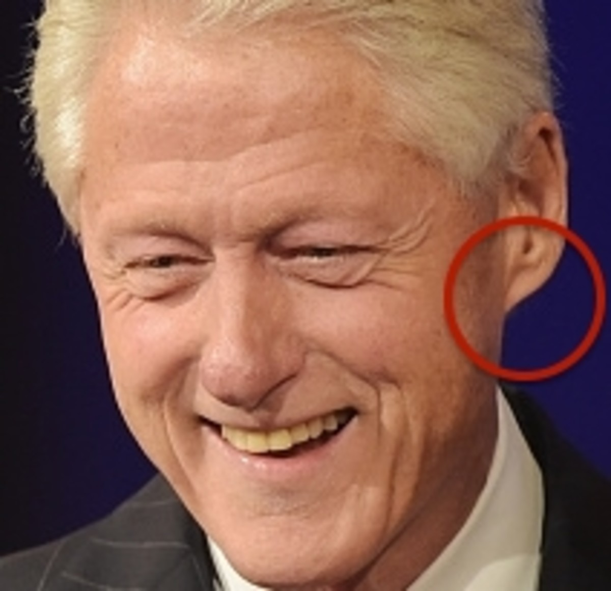This is the SAME earlobe!