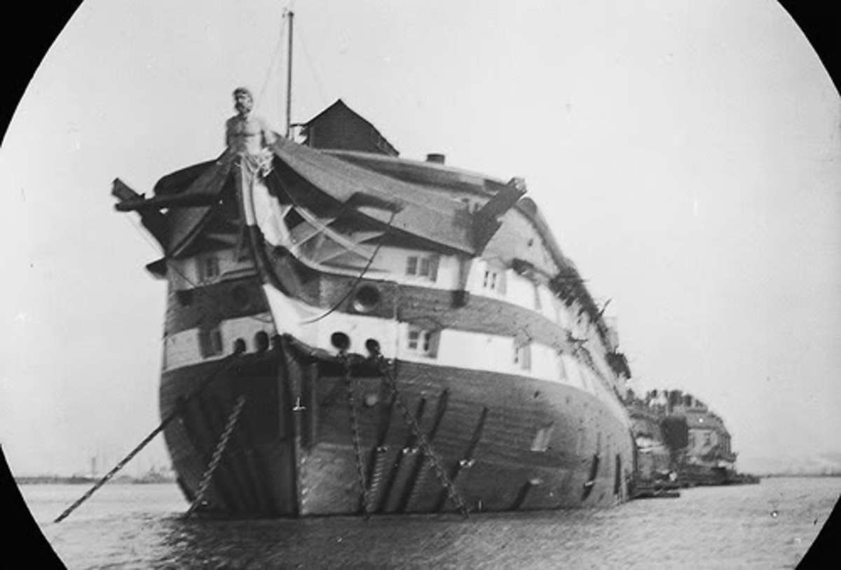 The horrific smallpox disease treated in Dartford Long Reach Hospital ships.