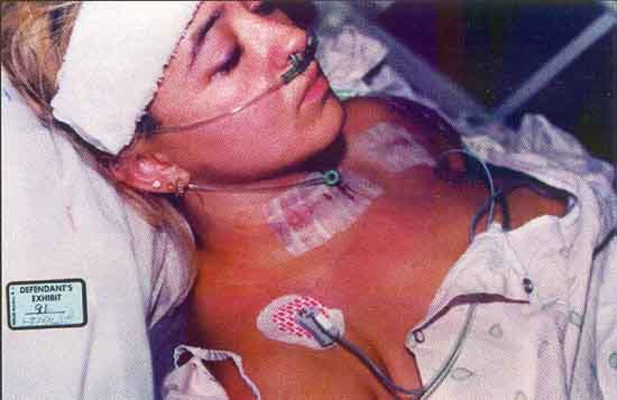 Darlie in the hospital with her wounds. This photo was taken in the ICU. Darlie must have put her earrings back in for the photo. Operating room staff remove ALL jewelry before any type of surgery and the nasal cannula tubing would rub on the earring