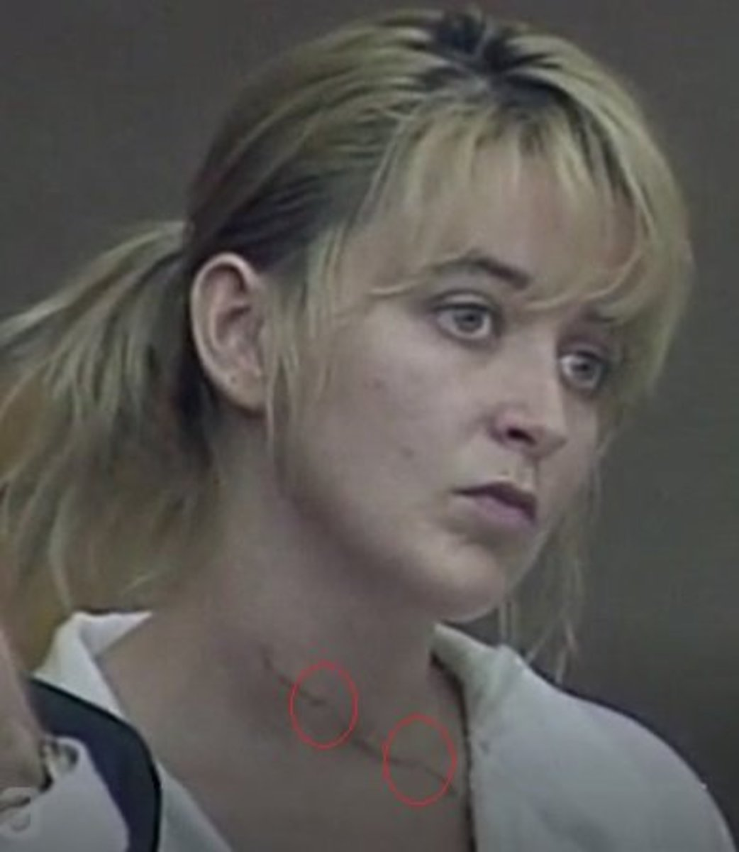 Forensic pathologists have noted that Darlie's neck wound appeared to have at least 2 hesitation areas and it was crooked, indicating self infliction; where if this were a slash during a fight, it would most likely be a nonstop straight laceration.