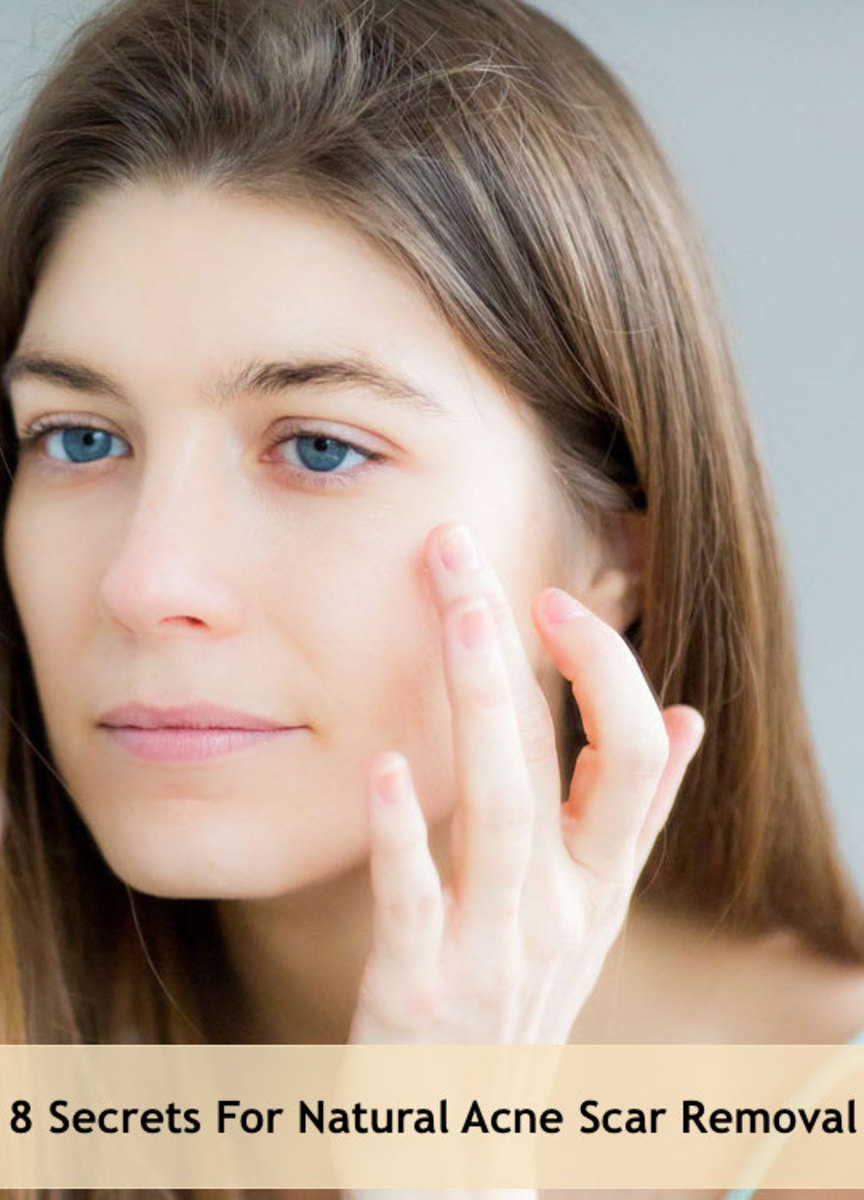8 Secrets For Natural Acne Scar Removal