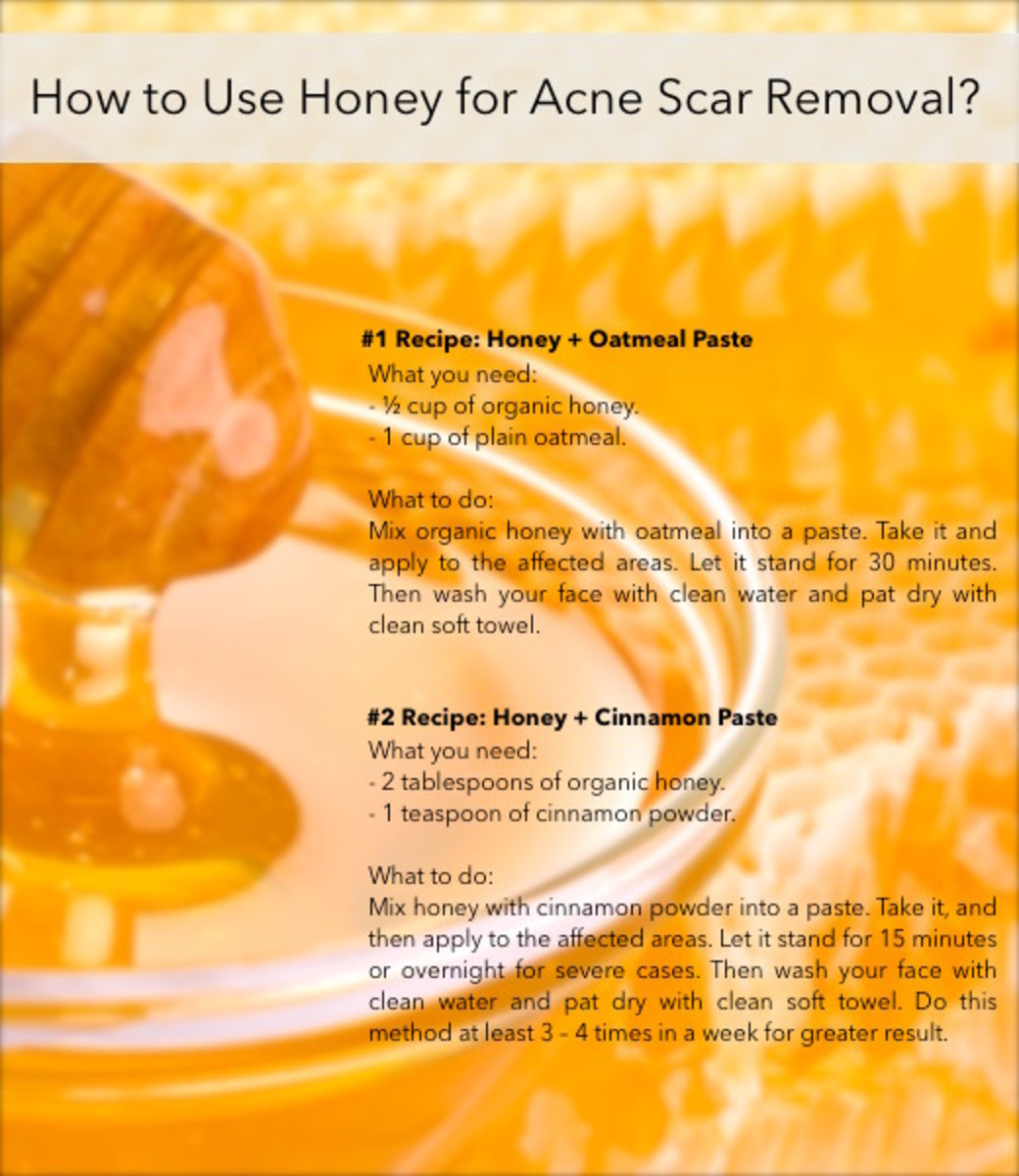 Above are two most popular honey recipes for natural acne scar removal.