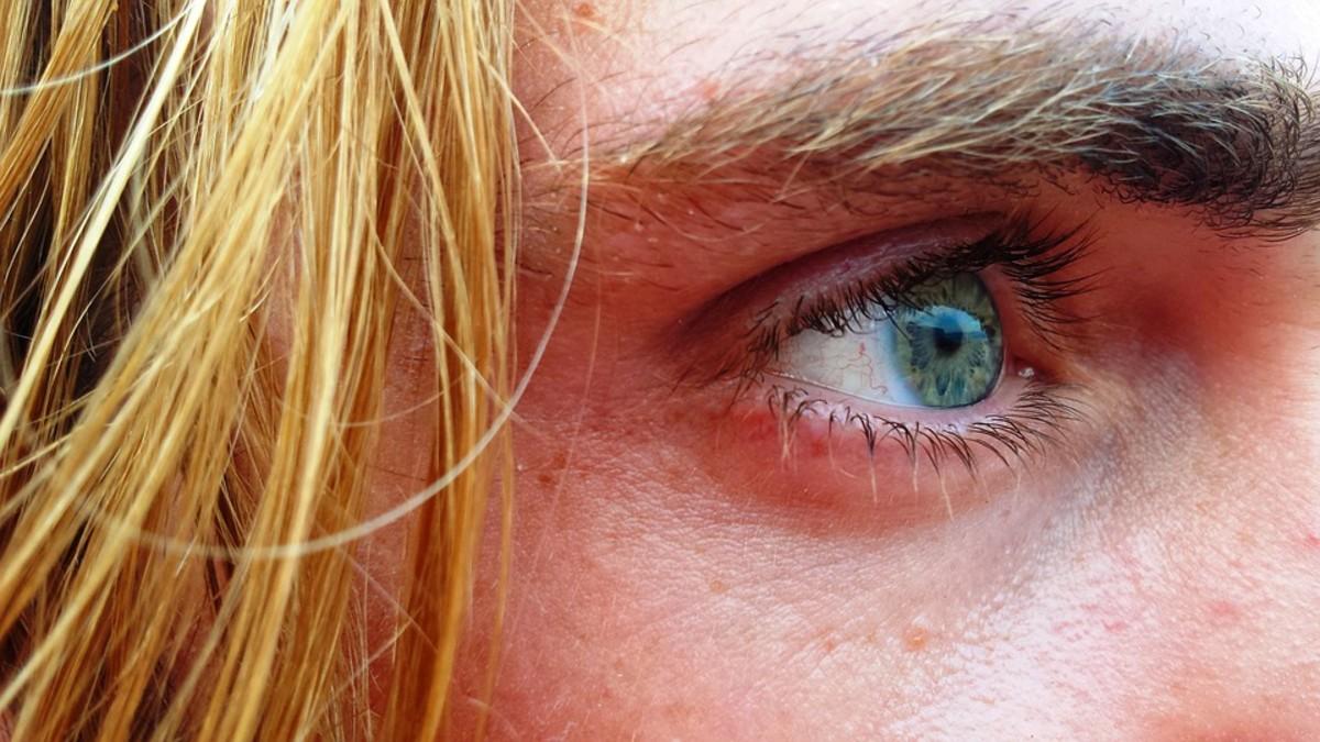 Common Causes of Ingrown Eyelashes