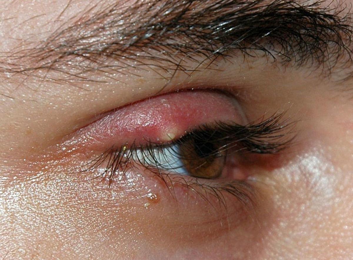 Trichiasis or Ingrown eyelashes