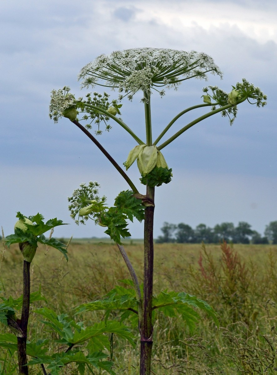 Giant Hogweed Plant Sap Causes Burns