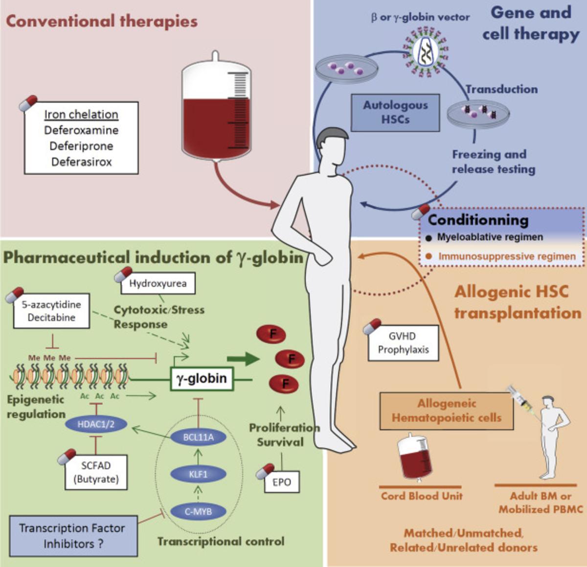 Pic: Some treatment procedures of thalassemia