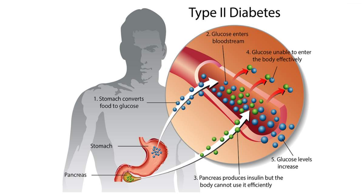 How to Prevent, Treat, and Manage Type-2 Diabetes Mellitus?