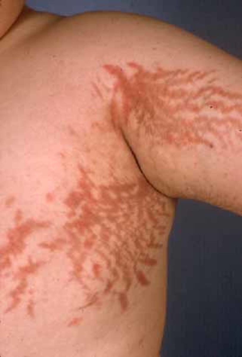 Corticosteroids create this type of blood marks (destroy blood vessels)