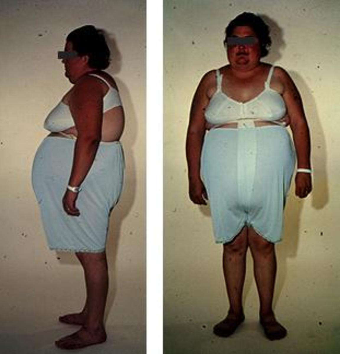 "...and create this type of obesity...because they change metabolism, kill immune system and destroy inner organs...after long-term use...it is called ""ugly disease"""