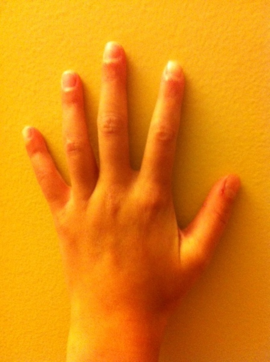 Mixed hand shape:round thumb, pointed index and forefinger, square ring finger, spatula pinky. Rare indeed.