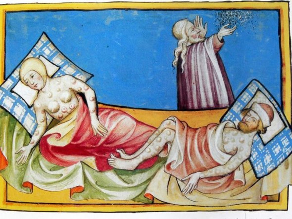 An image from the Toggenburg Bible, (Switzerland, 1411) is widely believed to show the symtoms of the Black Death. Since plague blisters normally appeared only in the groin or armpits; so this image could, however, be of smallpox.