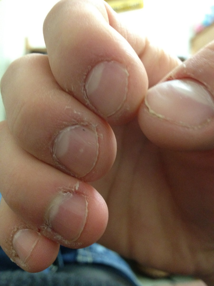 Stop Nail Biting Today | HubPages
