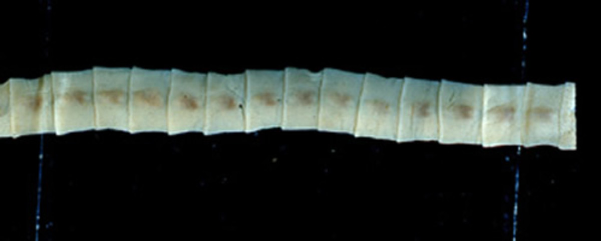 Picture of Tapeworm Sections