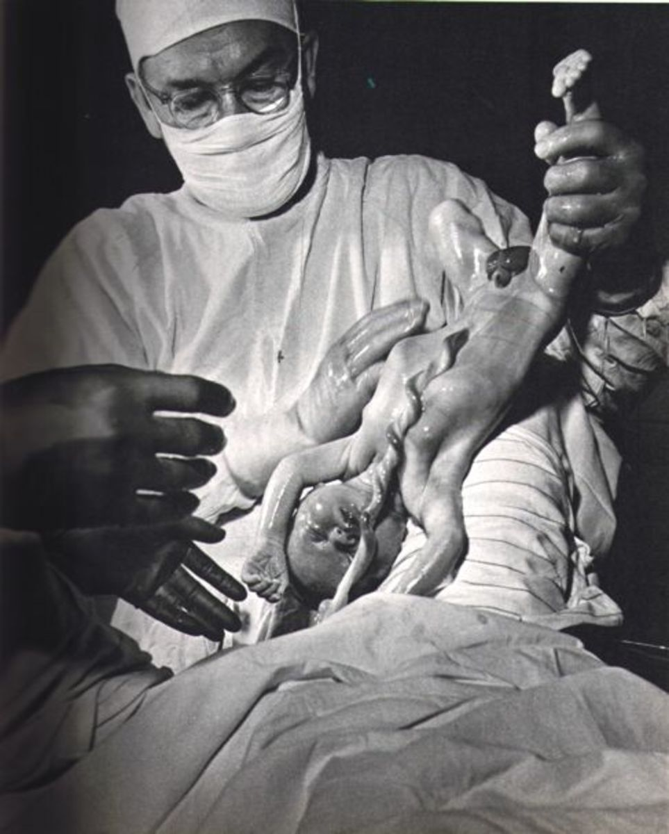"""CHILDBIRTH"" BY WAYNE MILLER IN 1946"