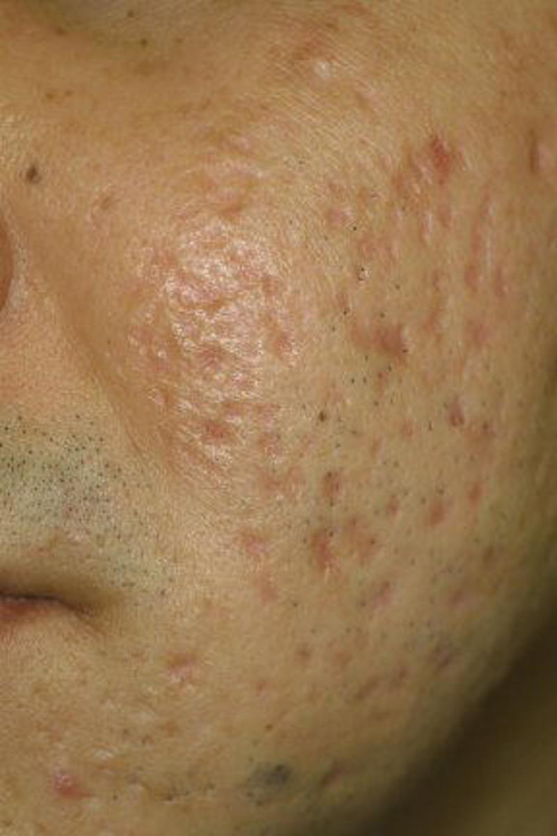 how to get rid of small acne scars