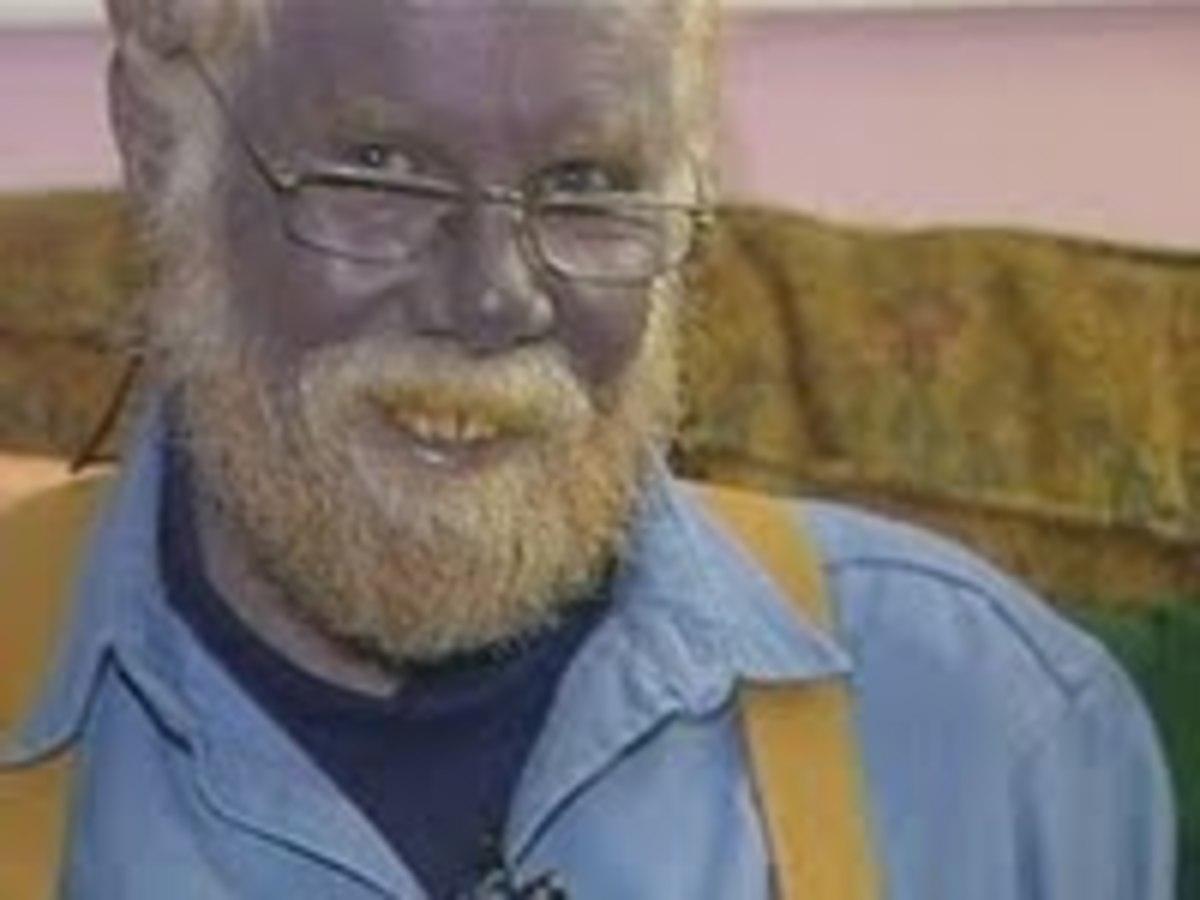 Paul Karason, the so called 'blue man'
