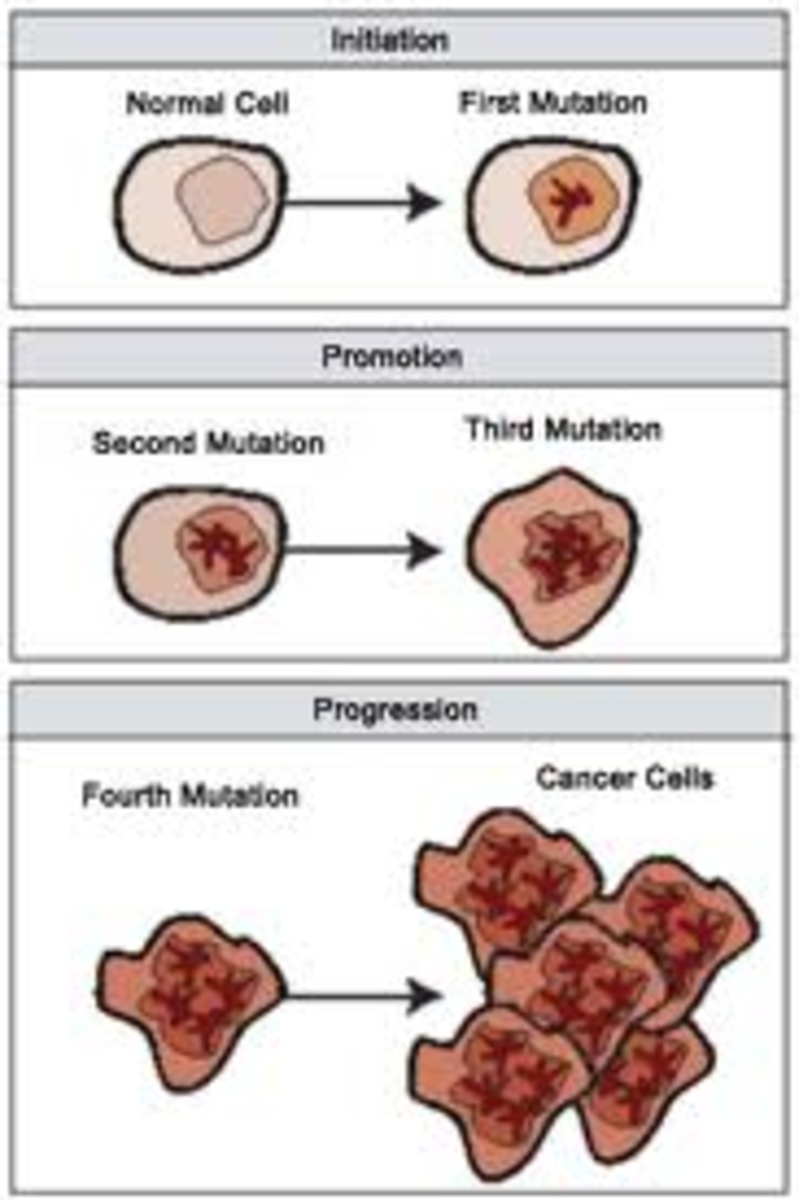 Cancer Stages With Staging Chart