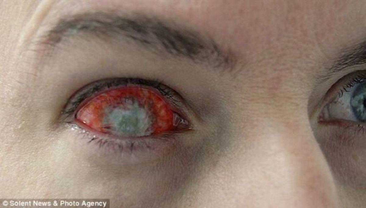 Zombie lenses