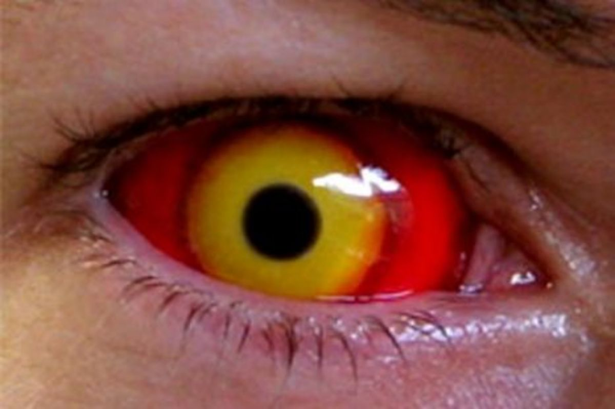 Ideas for Using Special Effect Contacts Lenses with a Halloween Costume (Zombie Eyes)
