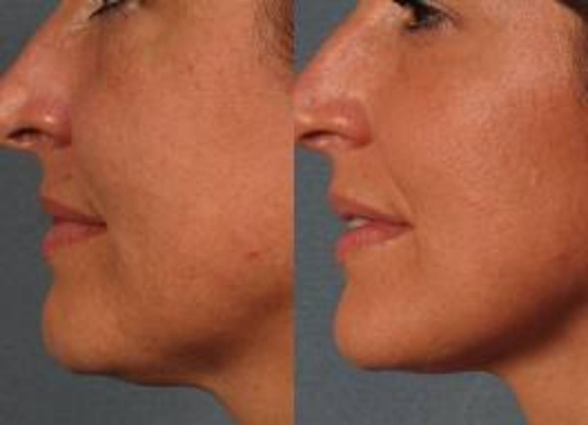 Again she has done well with her chemical peel