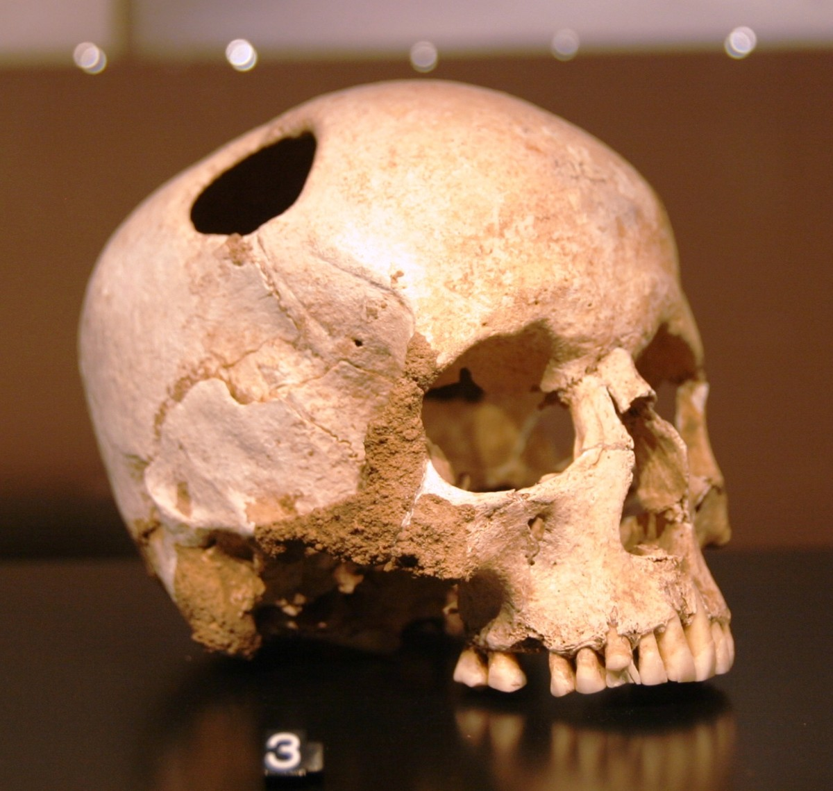 girl skull, trepanated with a silex; neolithic (3500 BC) ; patient survived. Natural History Museum, Lausanne