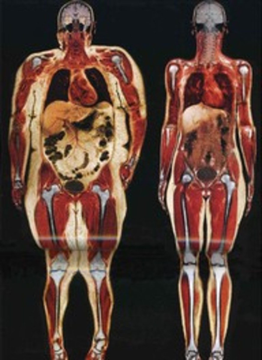 Excess weight is so hard on your internal organs.