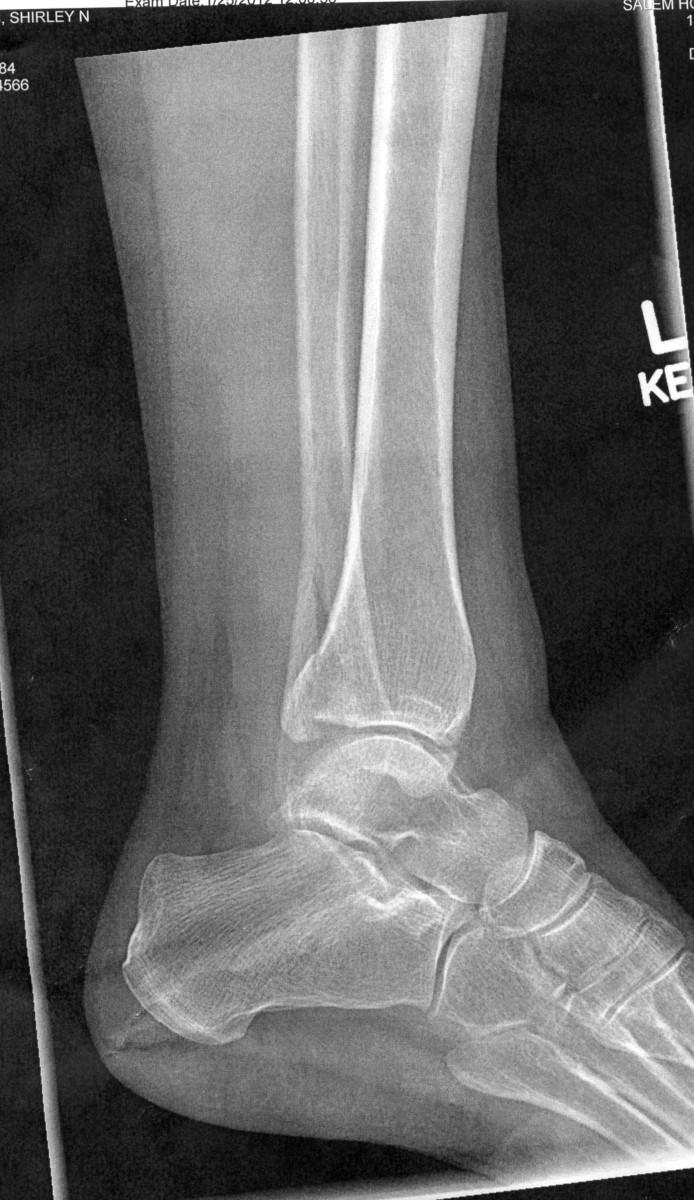 broken-ankles-101