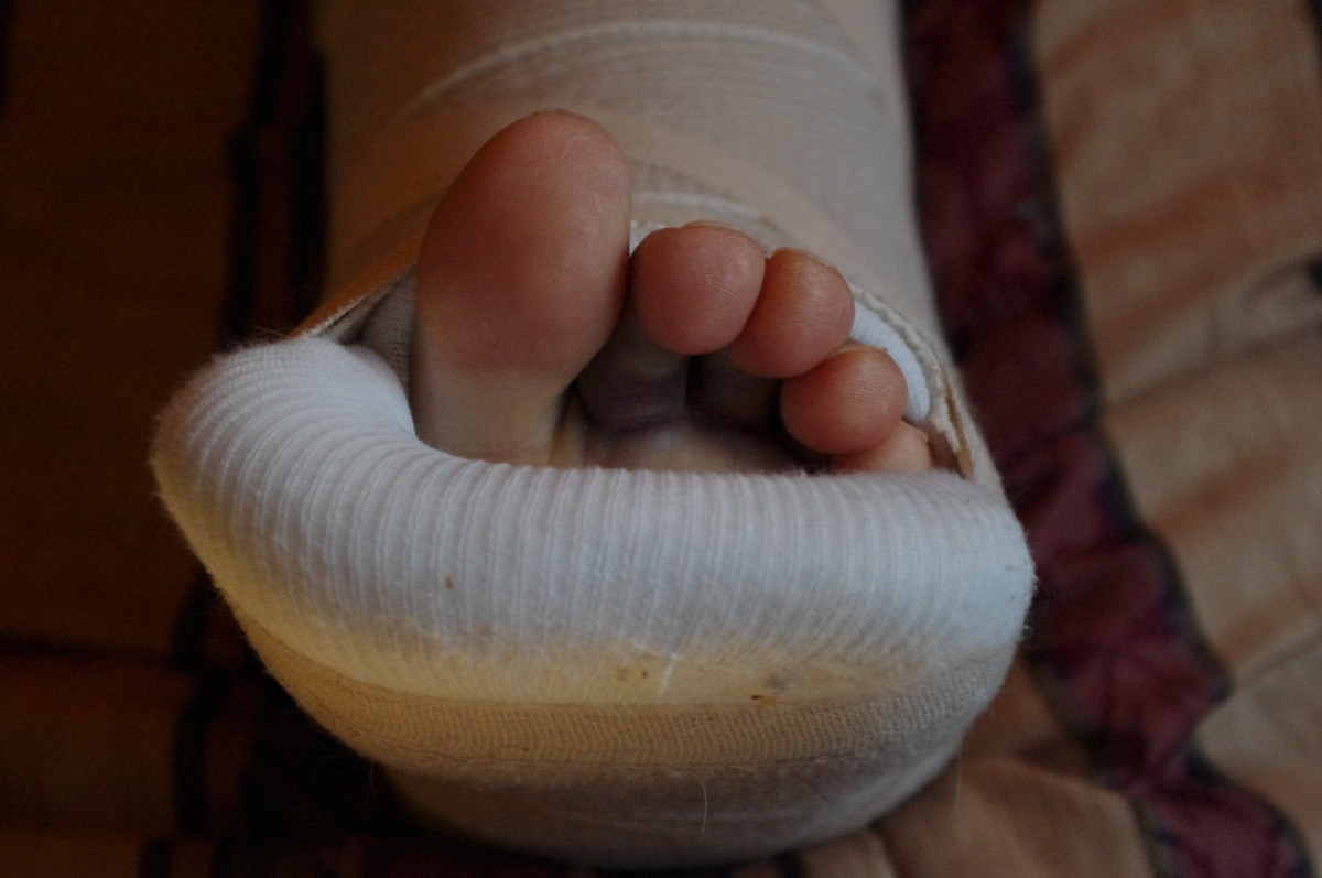 Broken Ankles 101