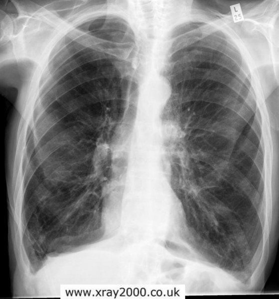Picture of Emphysema in The Lung