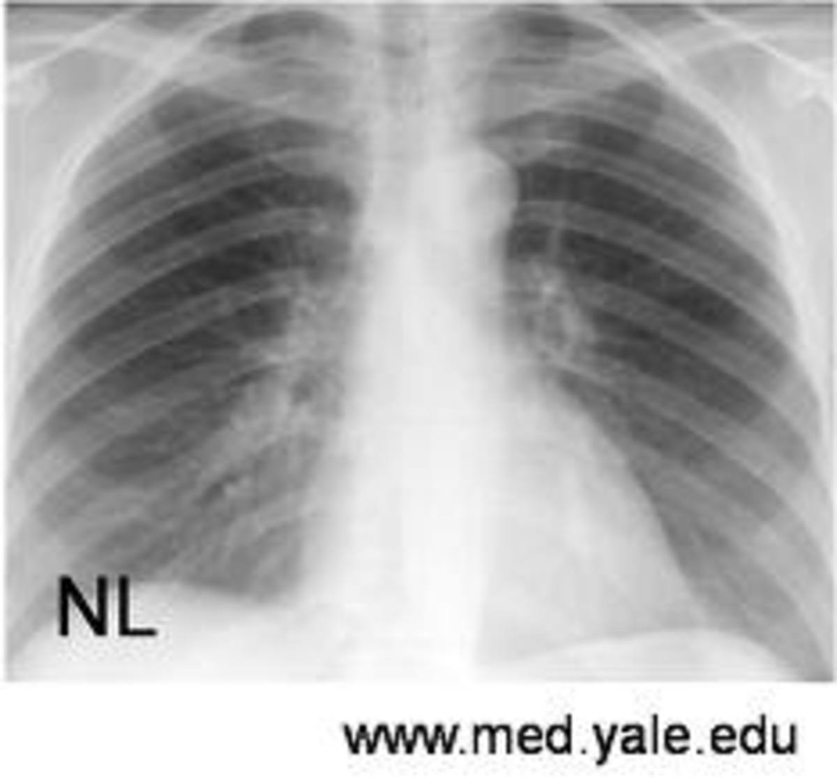 This is what a healthy, normal chest X-ray looks like. Compare it to the one above with emphysema. See the difference?