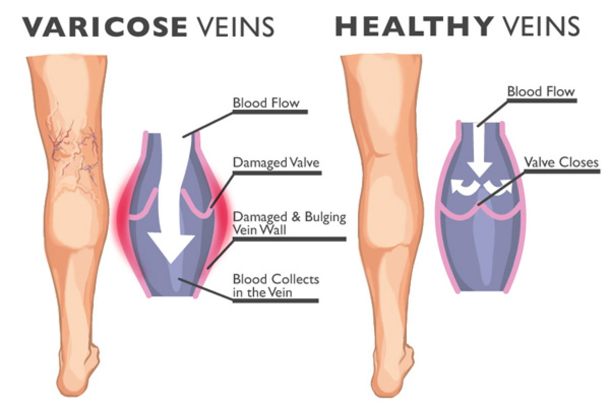 Veins, normal and varicose