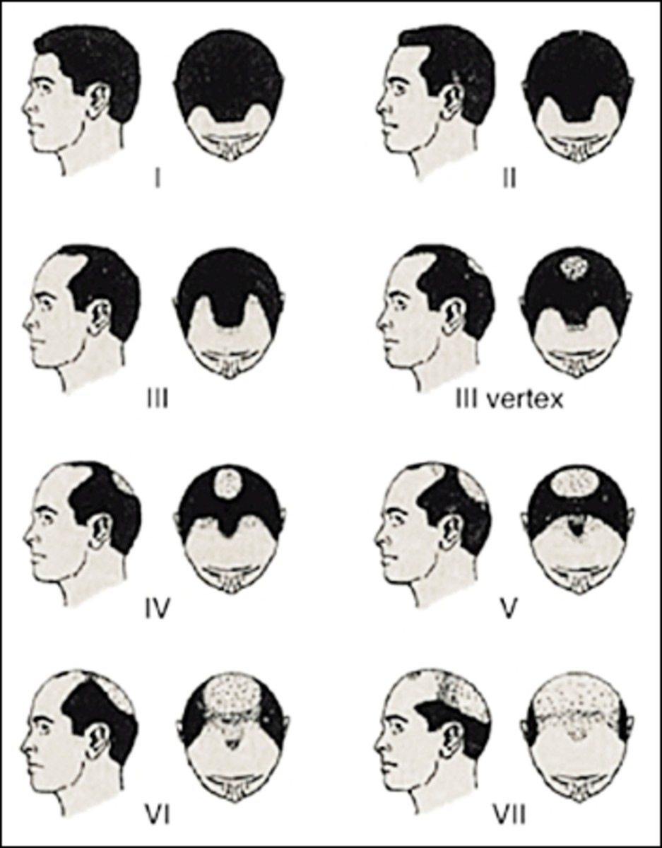 Norwood-Hamilton Scale of Male Pattern Baldness, published in Expert Reviews of Molecular Medicine by Cambridge University Press 2002- 2013 Hairstyles for Men with Balding Thinning Hair Style Cuts Trends by Rosie2010