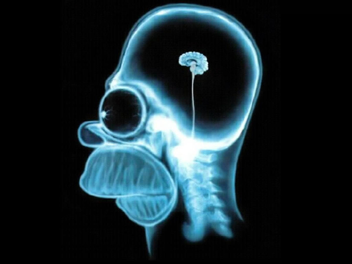 Despite the evidence, many people have a larger brain than Homer Simpson.