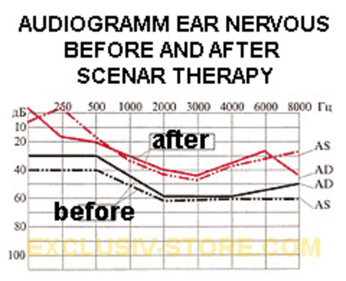 Graph of ear treatment using device