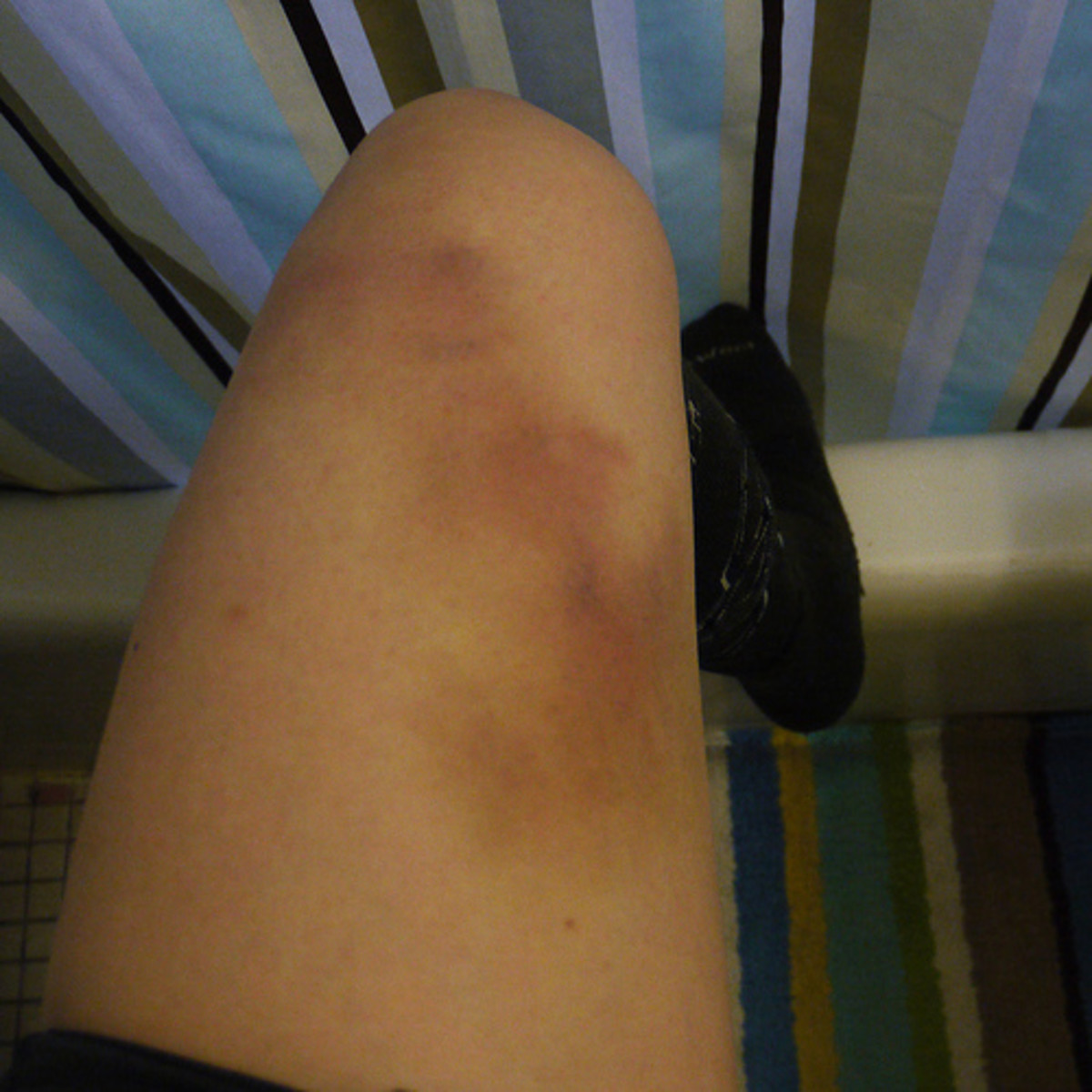 Any bruises or marks should be photographed.