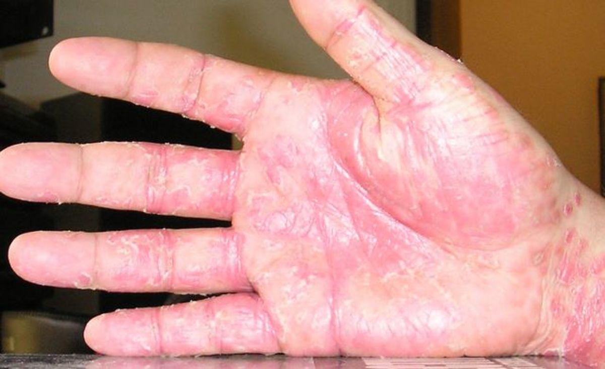 Peeling Skin on Hands