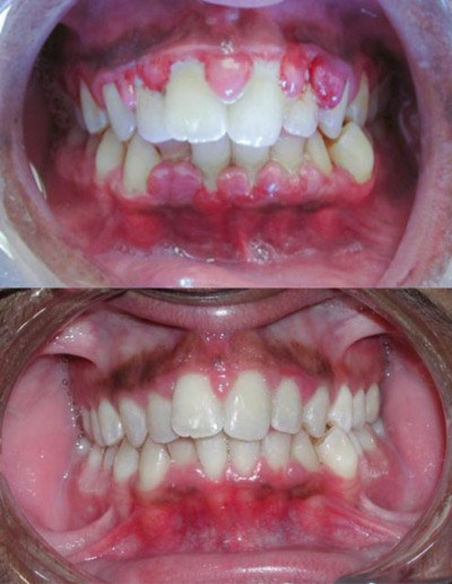 Inflamed gums, before and after treatment!