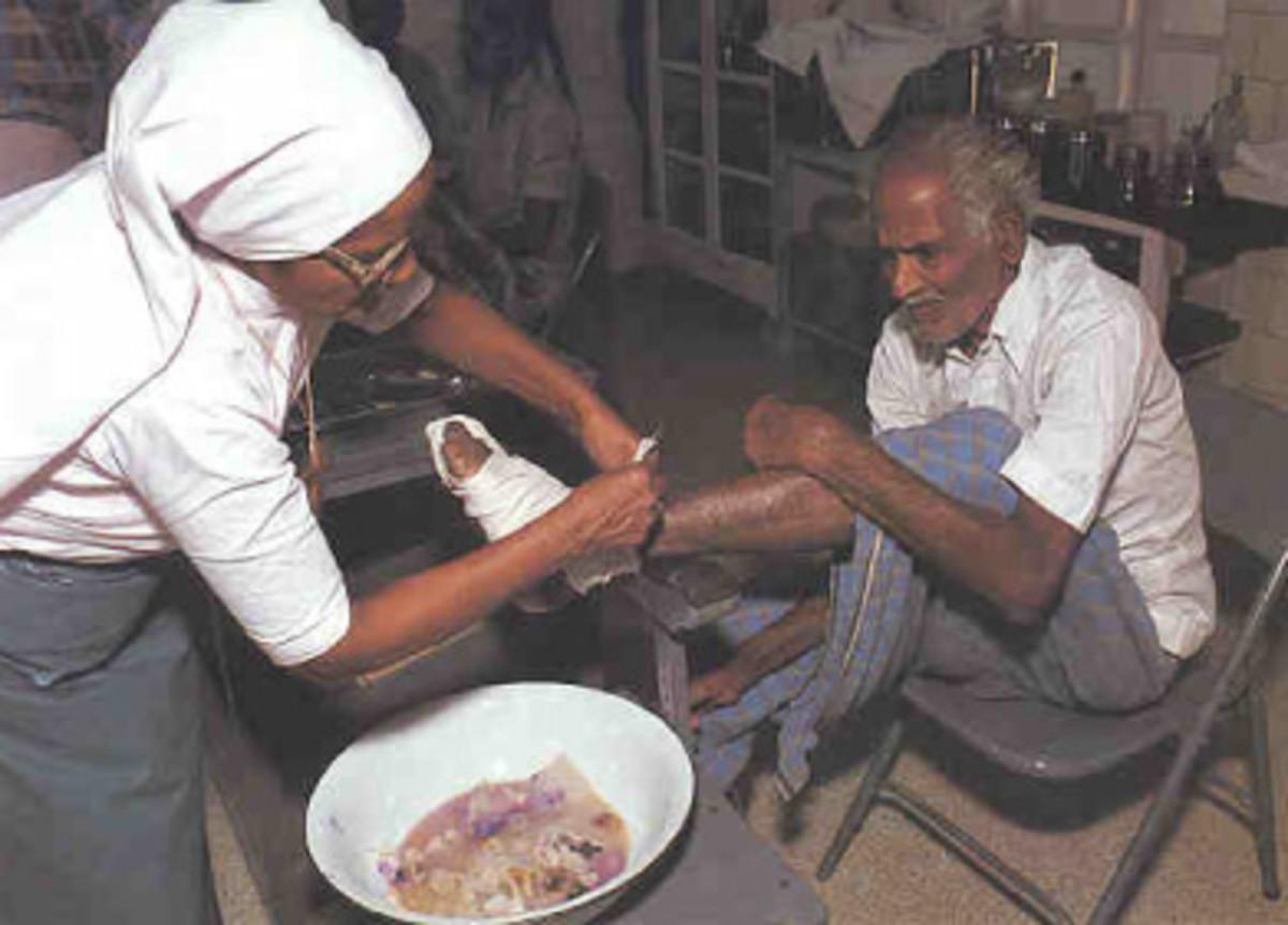 Sister bandages leprosy