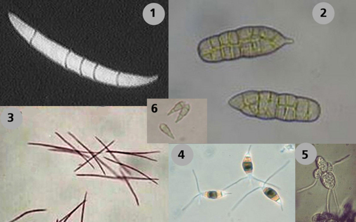 Fungal spore types that cause gray leaf spots in various plants: (1) Cercospora, (2) Stemphyllium, (3) Septoria, (4) Pestalotia, (5) Entomosporium and (6) Pyricularia grisea.  Microscope magnification around 300X.